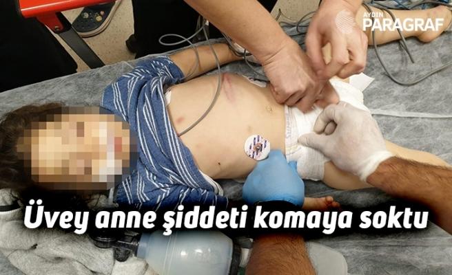 Üvey anne şiddeti komaya soktu